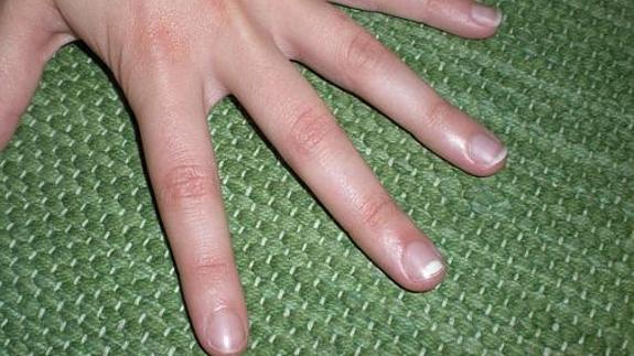Leuconiquia o manchas blancas en las uñas, ¿a qué se deben? | Diario Sur